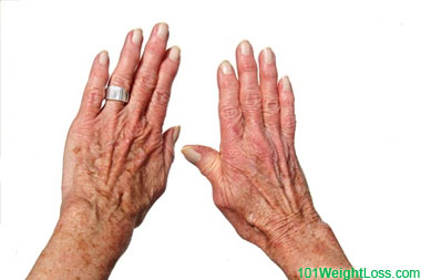 Osteoarthritis and being Overweight